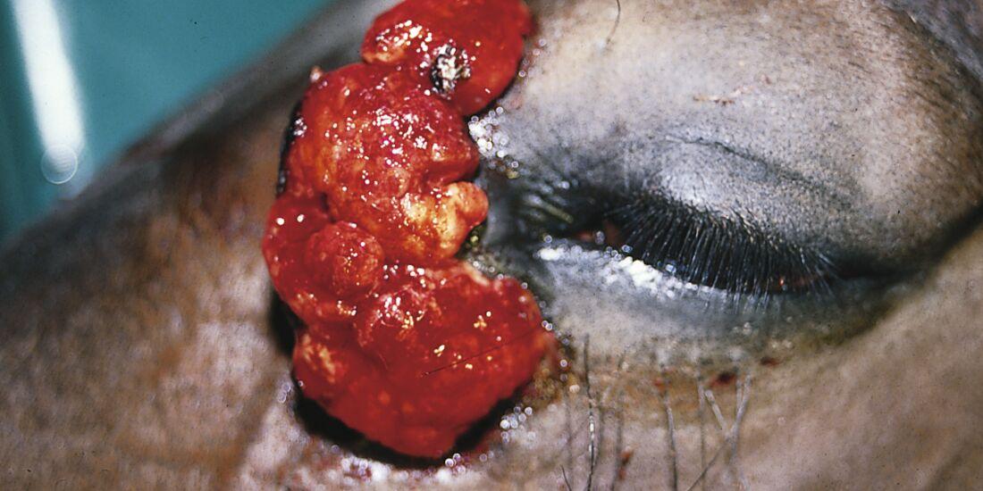 CAV Symptom-Lexikon - Equines Sarkoid