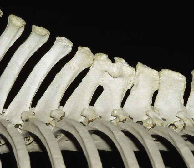 CAV Symptom-Lexikon Kissing Spine
